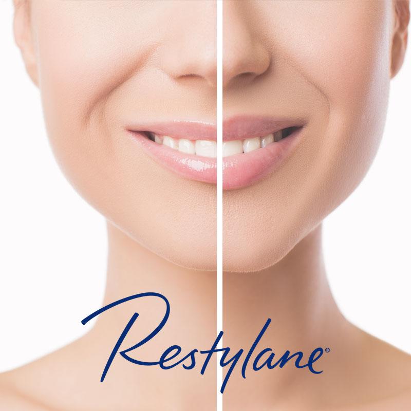 Free Restylane
